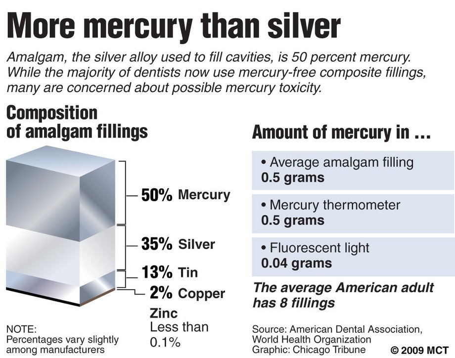 metals in dental amalgam