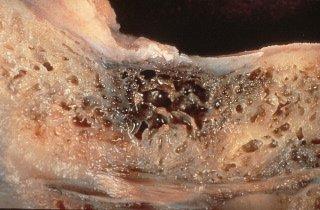 jawbone osteonecrosis