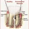 perio health & disease