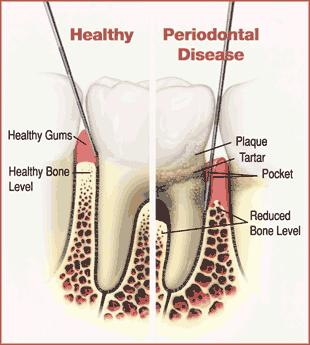 The Role Your Oral Health Plays in Aging-Associated Disease