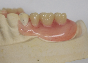 dental partial