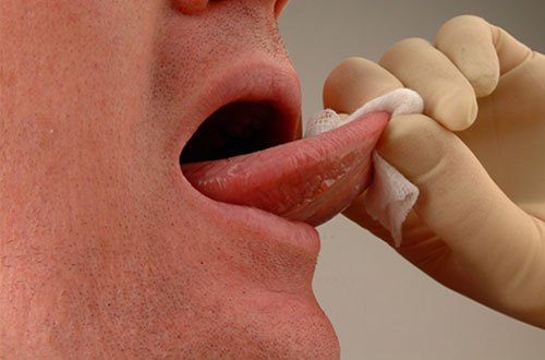 Reduce Your Risk of Becoming an Oral Cancer Statistic