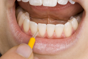 cleaning teeth with proxy brush