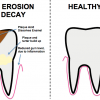 enamel erosion diagram