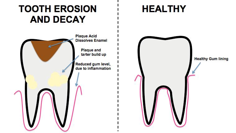 enamel erosion diagram
