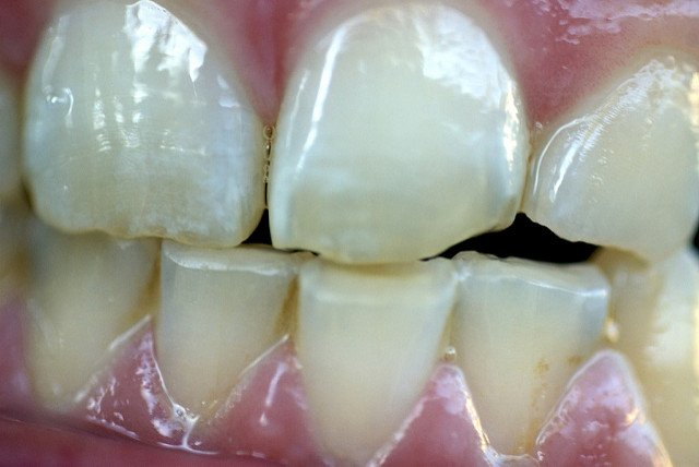 Grind Your Teeth? Got Gum Disease? The Two May Well Be Related