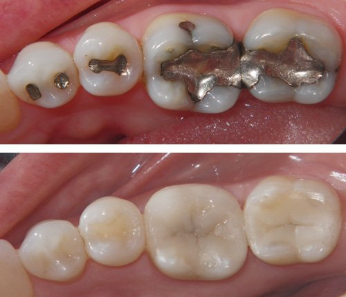 The Inevitable Replacement of Mercury Amalgam Fillings