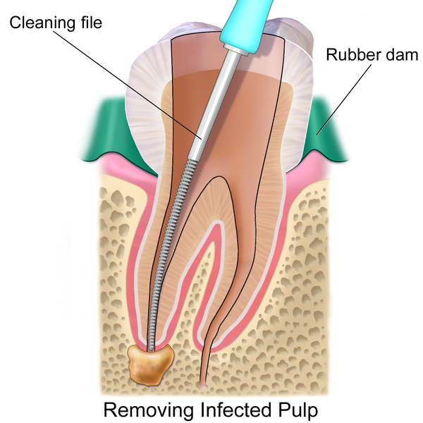 removing tooth pulp