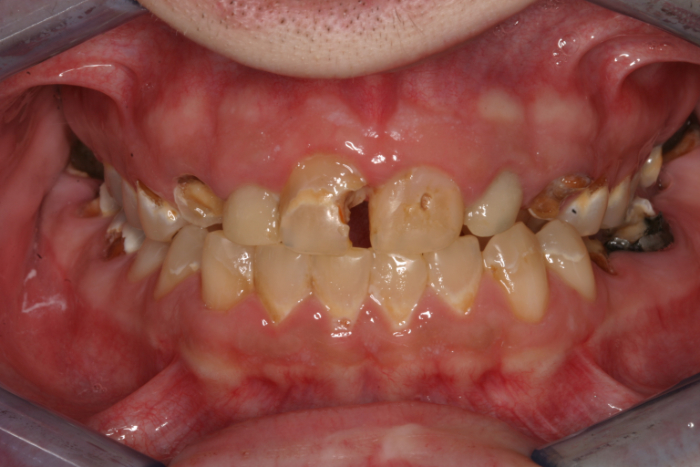 teeth badly damaged by vaping
